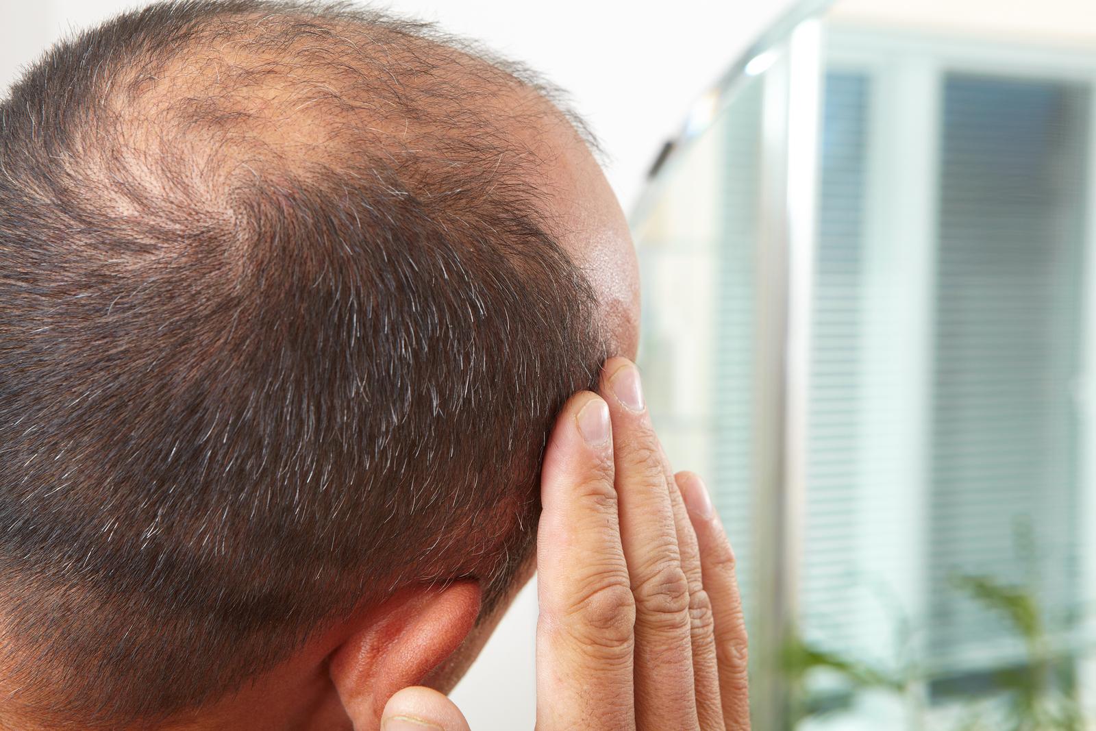 Выпадение волос простатите купить пластырь от простатита в аптеке